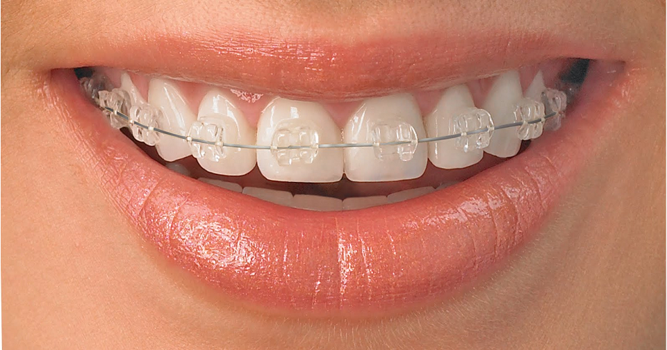 braces-dental
