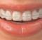 braces-dental