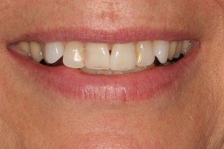 Black triangle in teeth
